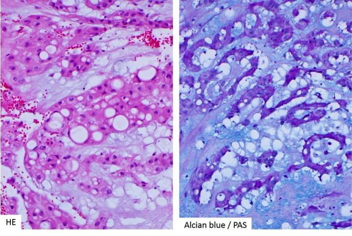 Pathology And Pathogenesis Of Pituitary Adenomas And Other