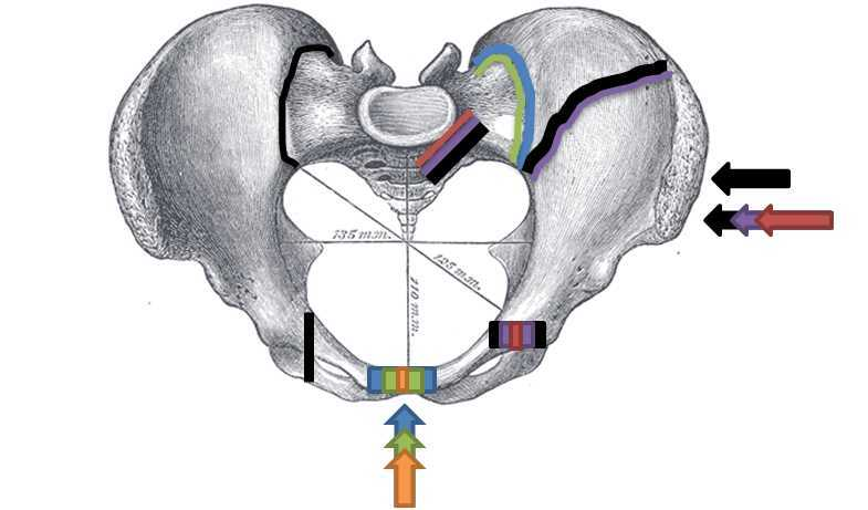 Figure, Superior view, Pelvic Fracture Types/Force...] - StatPearls ...
