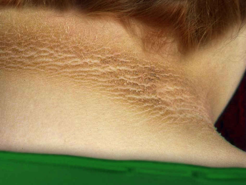 Image result for Acanthosis nigricans