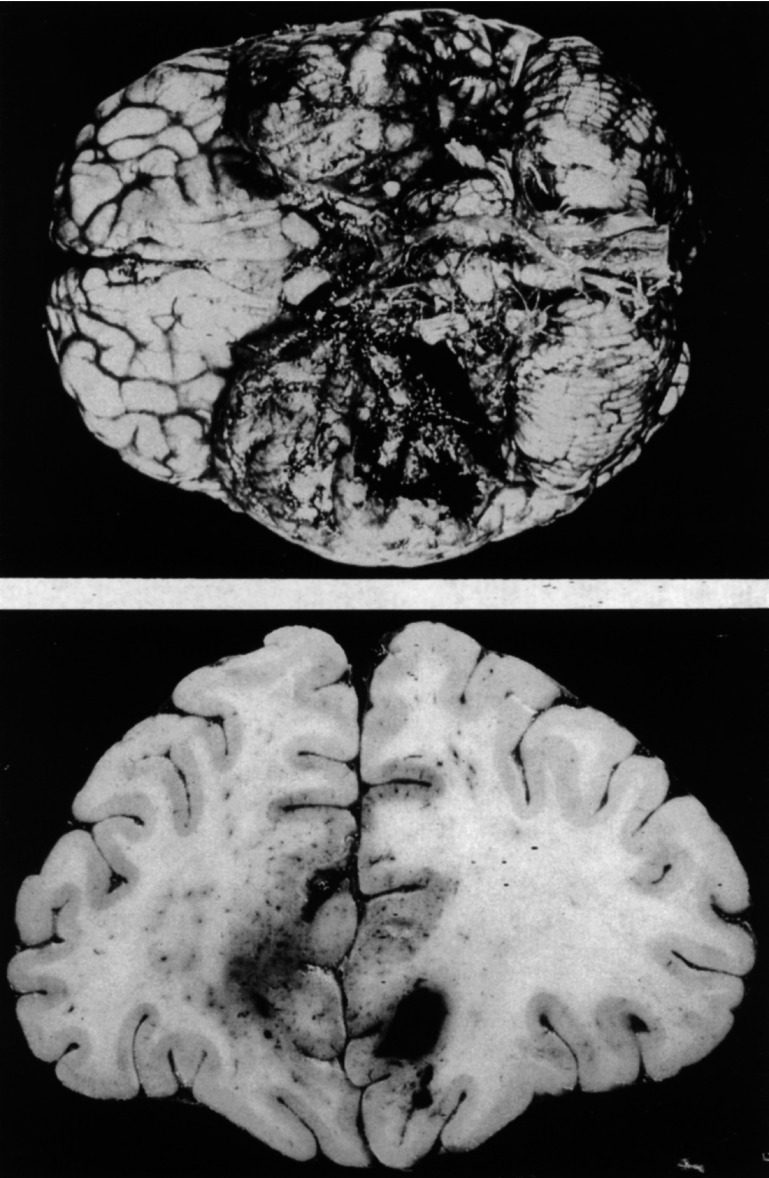 Fig. 32.4. Gross pathologic findings in HSE, illustrating hemorrhagic necrosis of the inferior medial portion of the temporal lobe (Whitley, 2001).