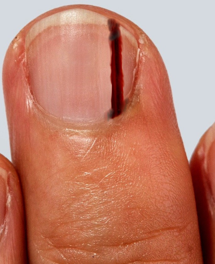 Figure Subungual Melanoma Of The Middle Finger Contributed