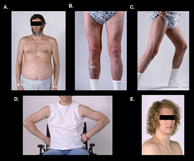 Lipodystrophy Syndromes Presentation And Treatment Endotext