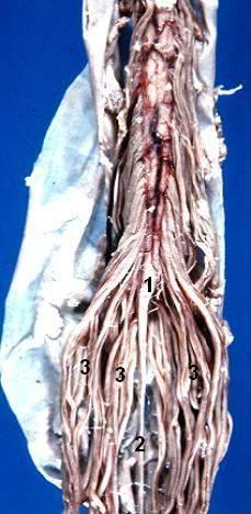 Figure Human Caudal Spinal Cord Statpearls Ncbi Bookshelf Educational video created by dr. figure human caudal spinal cord