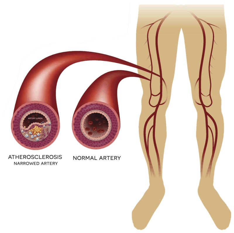 New Technologies For The Treatment Of Peripheral Artery Disease