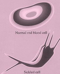 Figure 1. Illustration of a normal erythrocyte and a sickled red blood cell.