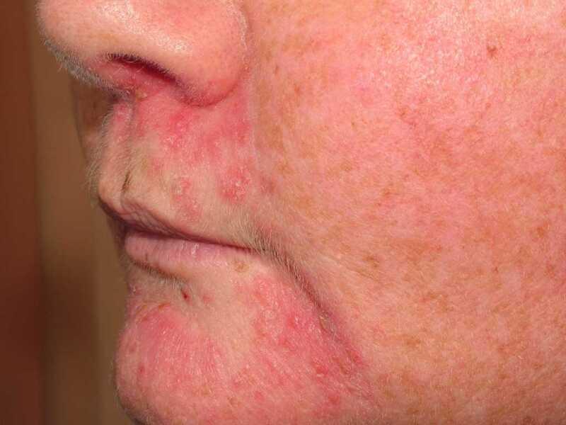perioralis dermatitis hpv vírus en jeuk
