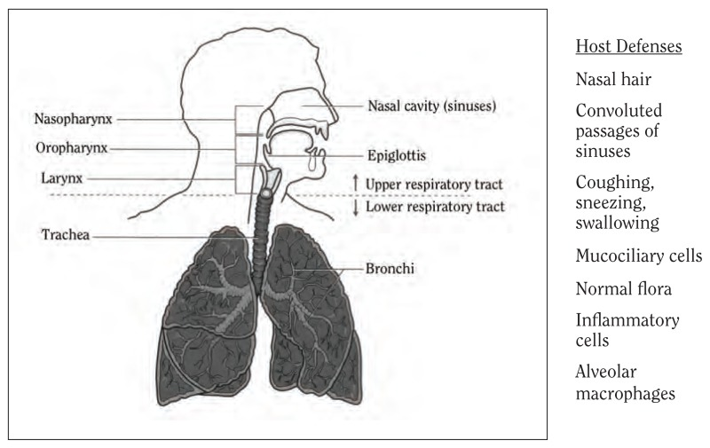 Illustration of the respiratory tract shows the nasal cavity (sinuses), epiglottis, upper respiratory tract, lower respiratory tract, bronchi, nasopharynx, oropharynx, larynx and trachea.