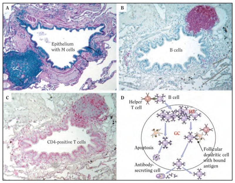 Figure 7.11, Lymphoid collections within lung tissue - How Tobacco ...