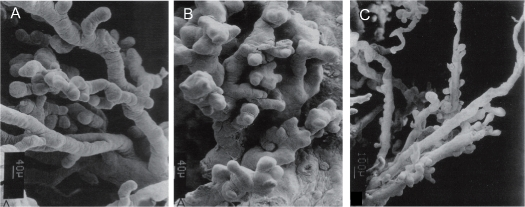 Figure 5.1. Scanning electron microscopy of placental villi from normal, preeclampsia and IUGR pregnancies.