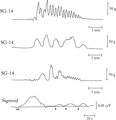 FIGURE 8. Short- and long-duration contractions in canine and human colons.
