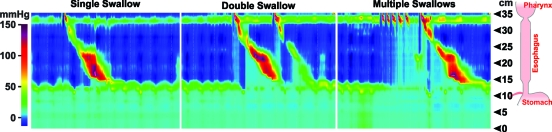 FIGURE 12. Deglutitive inhibition and esophageal muscle refractoriness recorded by high-resolution manometry.