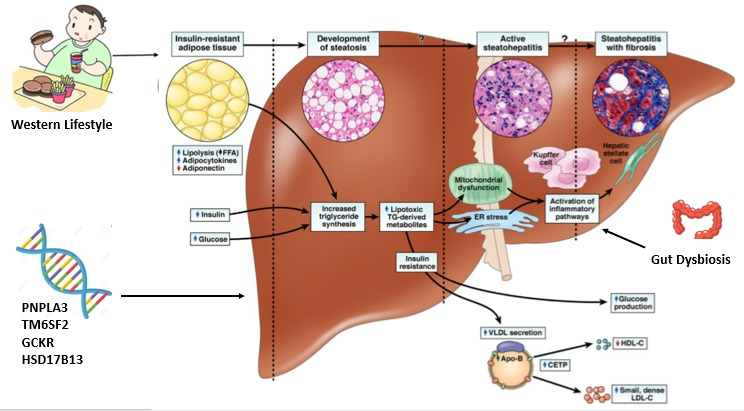 Nonalcoholic Fatty Liver Disease: The Overlooked