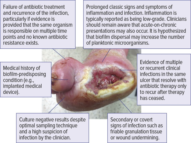 Figure 2 Clinical Signs And Symptoms That May Indicate Chronic Biofilm Infection Of A Dfu Diagnosis And Management Of Diabetic Foot Infections Ncbi Bookshelf