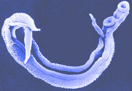 Karcinogenezis - Schistosomiasis ncbi