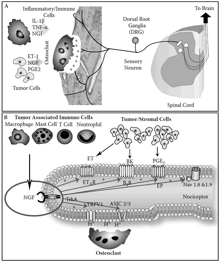 FIGURE 4.7. Schematic showing factors in bone (A) and receptors/channels expressed by nociceptors that innervate the skeleton (B) that drive bone cancer pain.