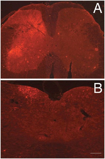 FIGURE 7.8. Anterograde and transneuronal transfer of WGA to postsynaptic neurons located in deep laminae of the spinal cord (A) and in the dorsal column nuclei (B) in NPY-ZW mice.