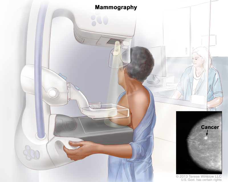 Figure Mammography The Breast Is Pressed Pdq Cancer