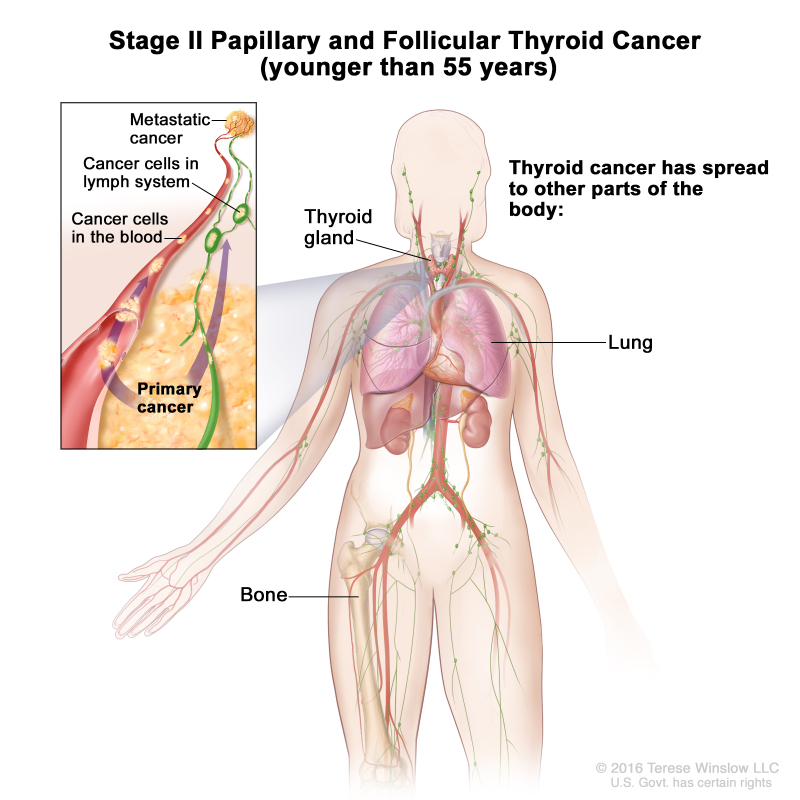 Thyroid Cancer Treatment Adult Pdq Pdq Cancer Information