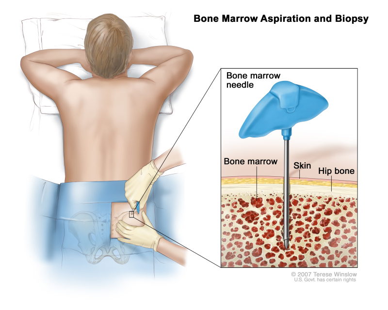 Figure, Bone marrow aspiration and biopsy...] - PDQ Cancer ...