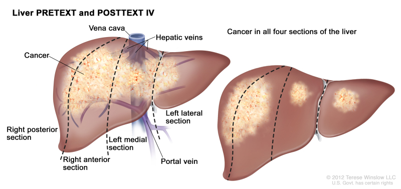 Childhood Liver Cancer Treatment Pdq Pdq Cancer Information