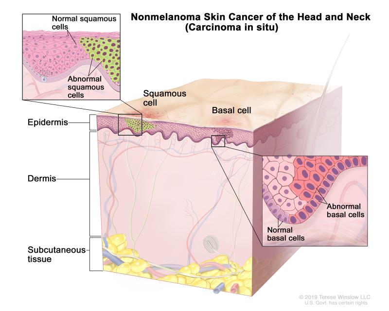 Skin Cancer Treatment Pdq Pdq Cancer Information Summaries Ncbi Bookshelf