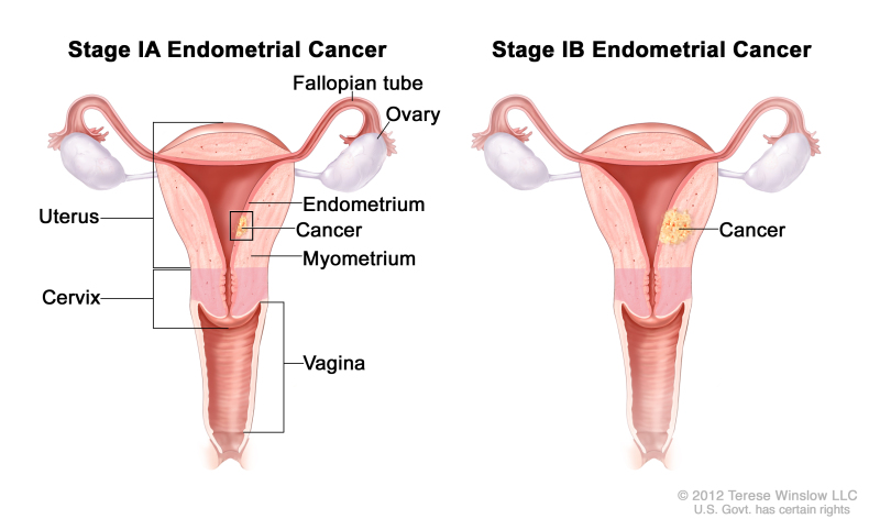 Cancer endometrial lymphadenectomy