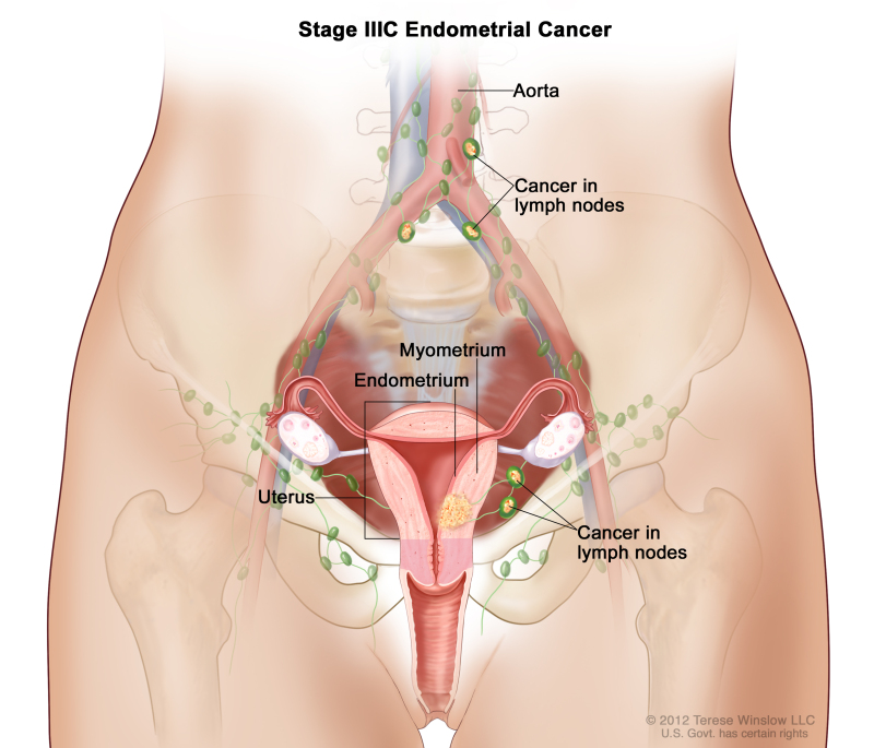 endometrial cancer pubmed