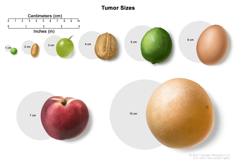 Figure Tumor Sizes Are Often Measured Pdq Cancer Information Summaries Ncbi Bookshelf How much are 7.5 centimeters in inches? https www ncbi nlm nih gov books nbk65847 figure cdr0000257530 268