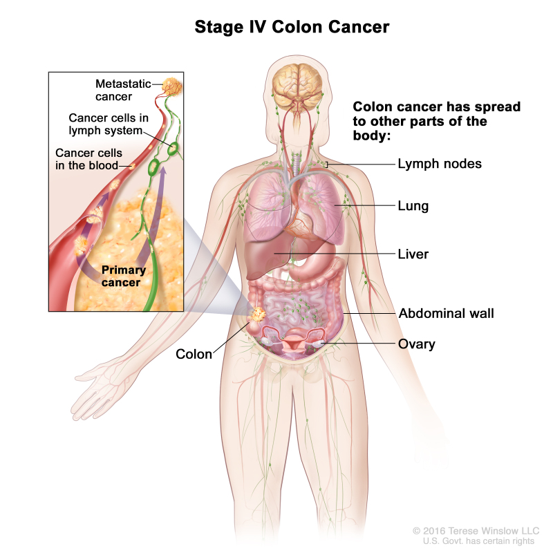 Table Table 5 Definitions Of Tnm Stage Iv Pdq Cancer