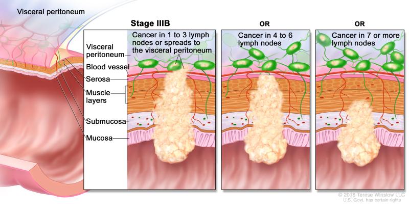 Table Table 4 Definitions Of Tnm Stages Iiia Iiib And Iiica Pdq Cancer Information Summaries Ncbi Bookshelf