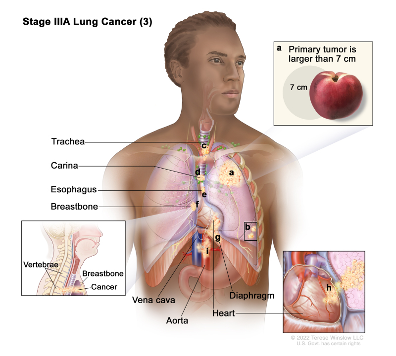 Non-Small Cell Lung Cancer Treatment (PDQ®) - PDQ Cancer