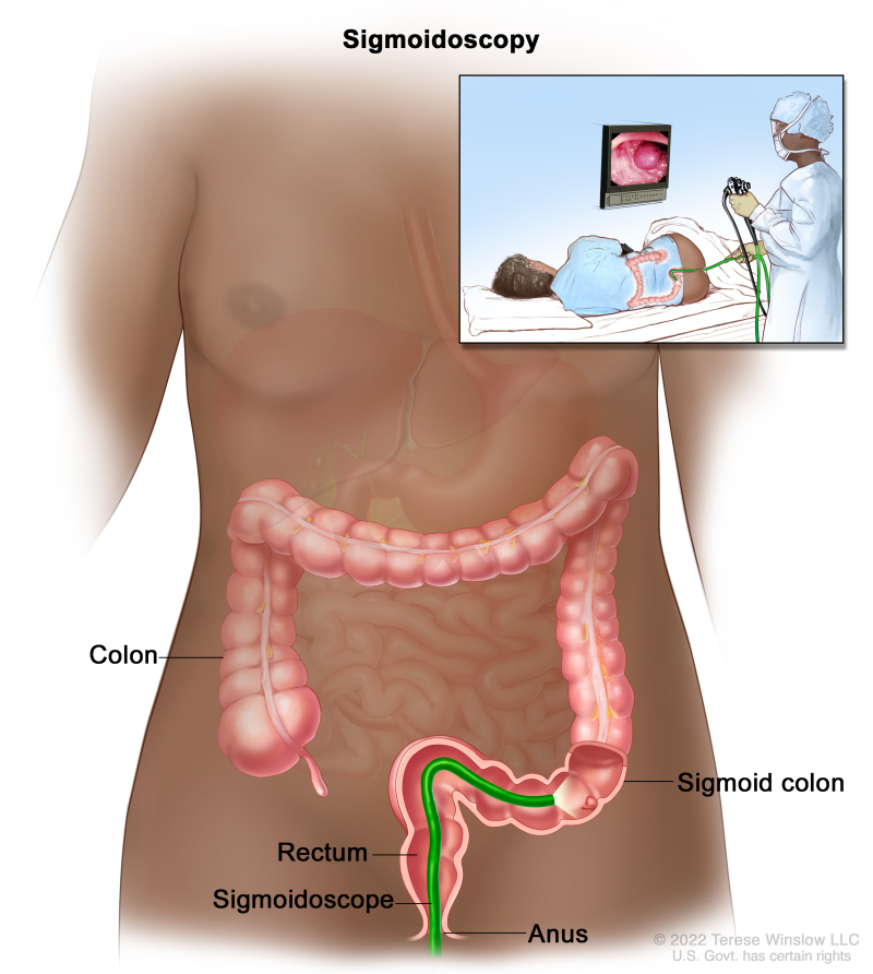 cancer colorectal ncbi)