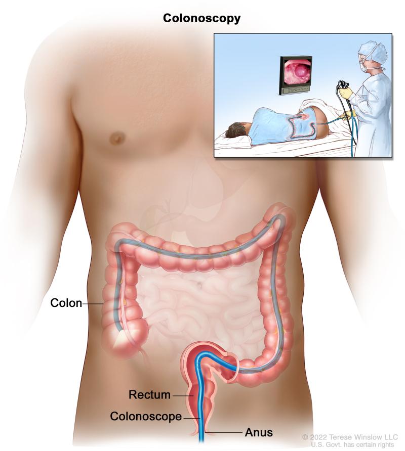 Colon tube anus tube