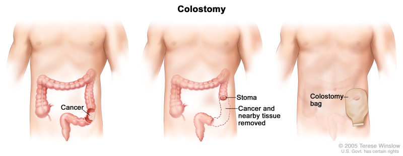 Cancer colorectal ncbi. [Acute-phase proteins in colorectal cancer].