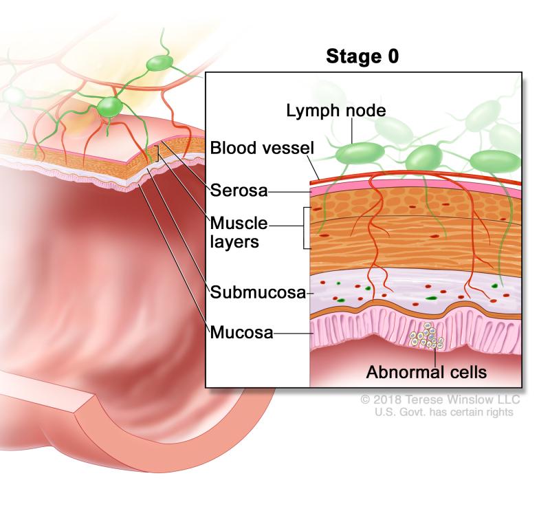cancer colon pubmed