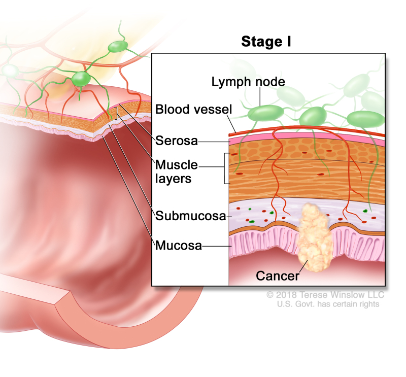 Stage I colorectal cancer; drawing shows a cross-section of the colon/rectum. An inset shows the layers of the colon/rectum wall with cancer in the mucosa and submucosa. Also shown are the muscle layers, serosa, a blood vessel, and lymph nodes.