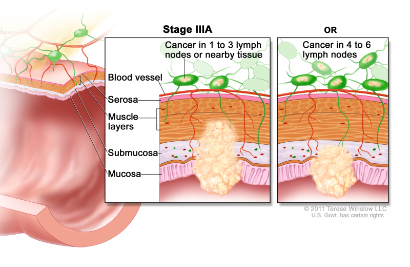 Stage IIIA colorectal cancer; drawing shows a cross-section of the colon/rectum and a two-panel inset. Each panel shows the layers of the colon/rectum wall: the mucosa, submucosa, muscle layers, and serosa. Also shown are a blood vessel and lymph nodes. The first panel shows cancer in the mucosa, submucosa, and muscle layers and in 2 lymph nodes. The second panel shows cancer in the mucosa and submucosa and in 5 lymph nodes.