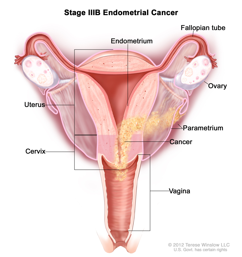 Figure Stage Iiib Endometrial Cancer Cancer Pdq Cancer