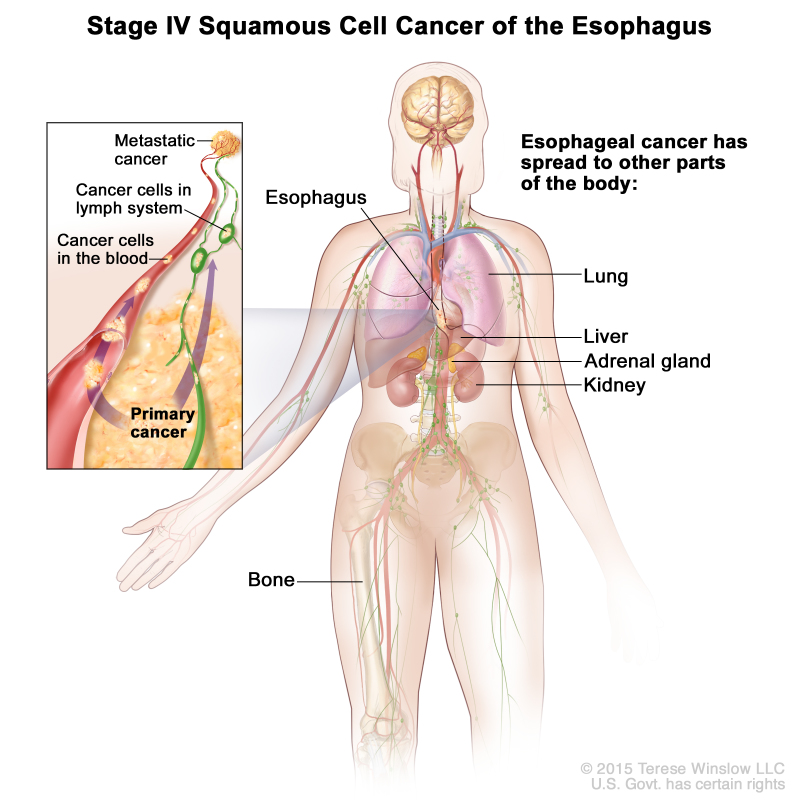 Metastatic cancer ncbi. Ovarian cancer vaccine