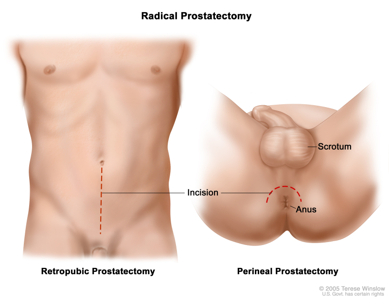 Figure Two Types Of Radical Prostatectomy Pdq Cancer