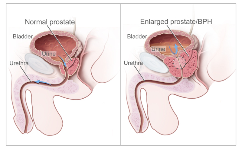Figure, Normal prostate and benign prostatic...] - PDQ Cancer ...
