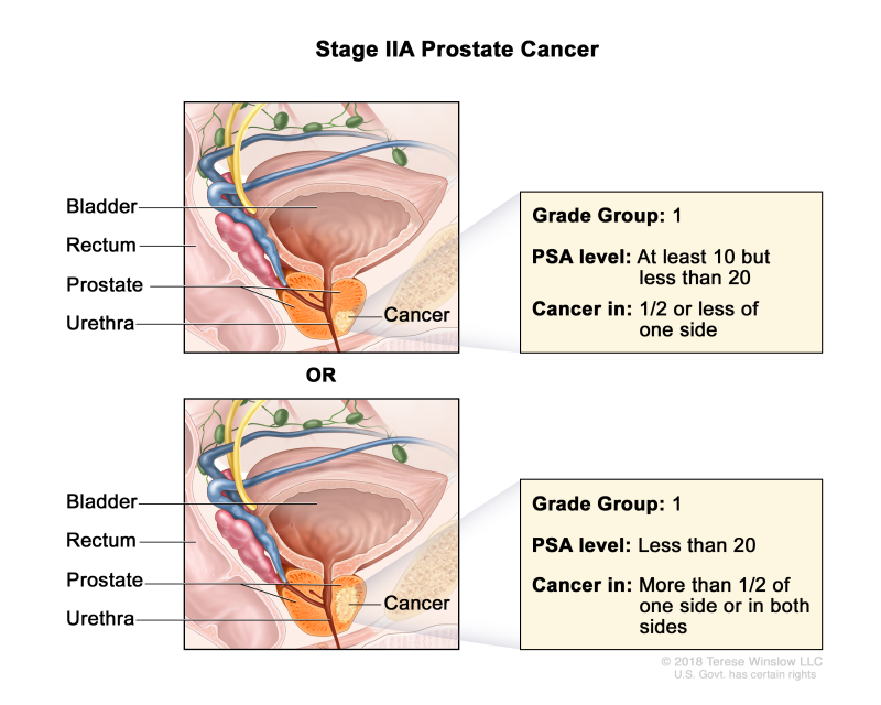 The Treatment of Prostatic Hypertrophy and Neoplasia