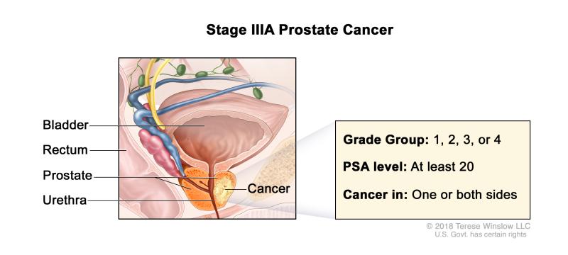 scansione prostascint per carcinoma prostatico