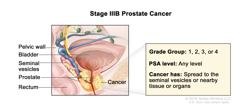Stage IIIB prostate cancer; drawing shows cancer that has spread from the prostate to the seminal vesicles and to nearby tissue. The PSA can be any level and the Grade Group is 1, 2, 3, or 4. Also shown are the pelvic wall, bladder, and rectum.