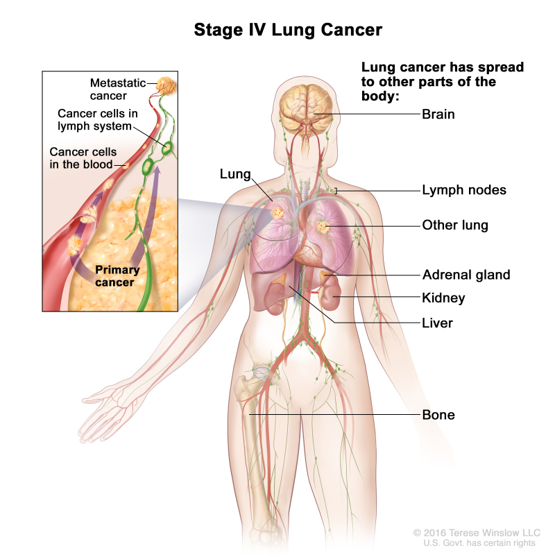 Figure Stage Iv Non Small Cell Lung Pdq Cancer Information Summaries Ncbi Bookshelf