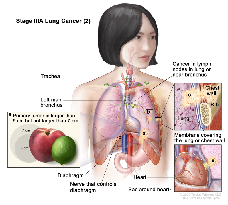 6757810743c Non-Small Cell Lung Cancer Treatment (PDQ®) - PDQ Cancer Information ...