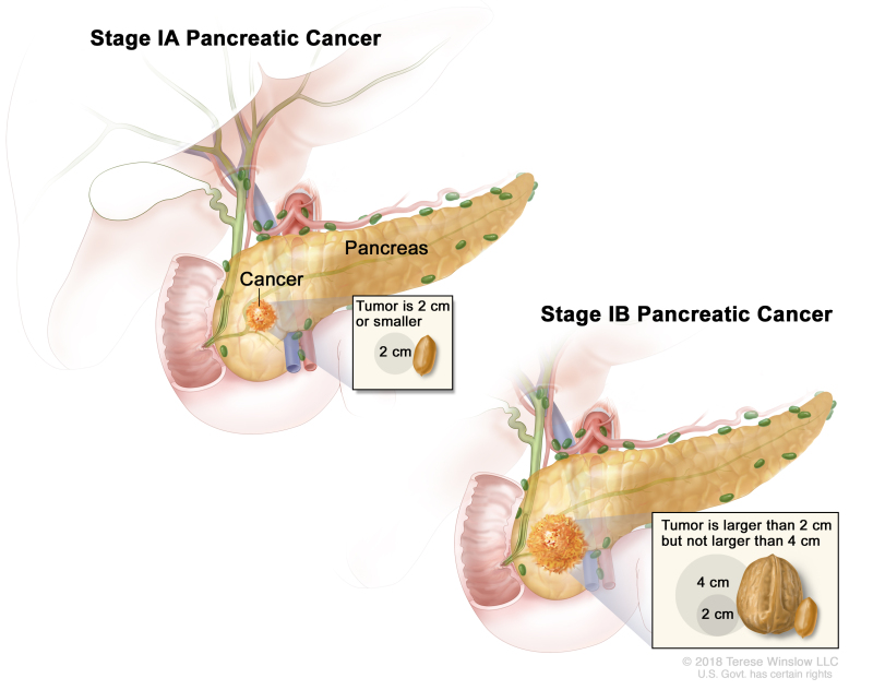 Table Table 2 Definitions For Exocrine Pancreas Tnm Stages Ia And