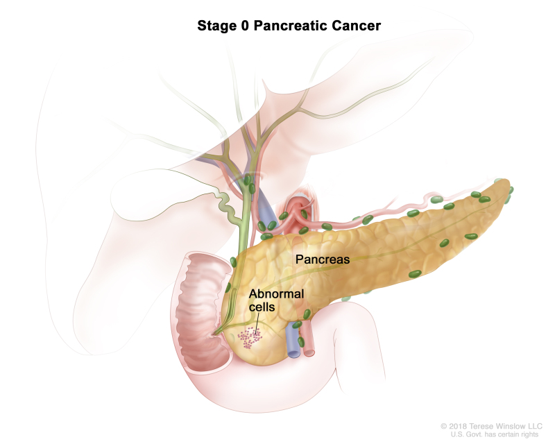 Stage 0 pancreatic cancer drawing shows abnormal