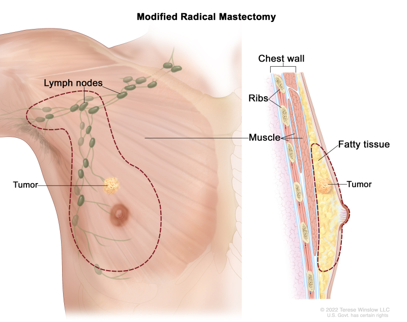 Male Breast Cancer Treatment Pdq Pdq Cancer Information