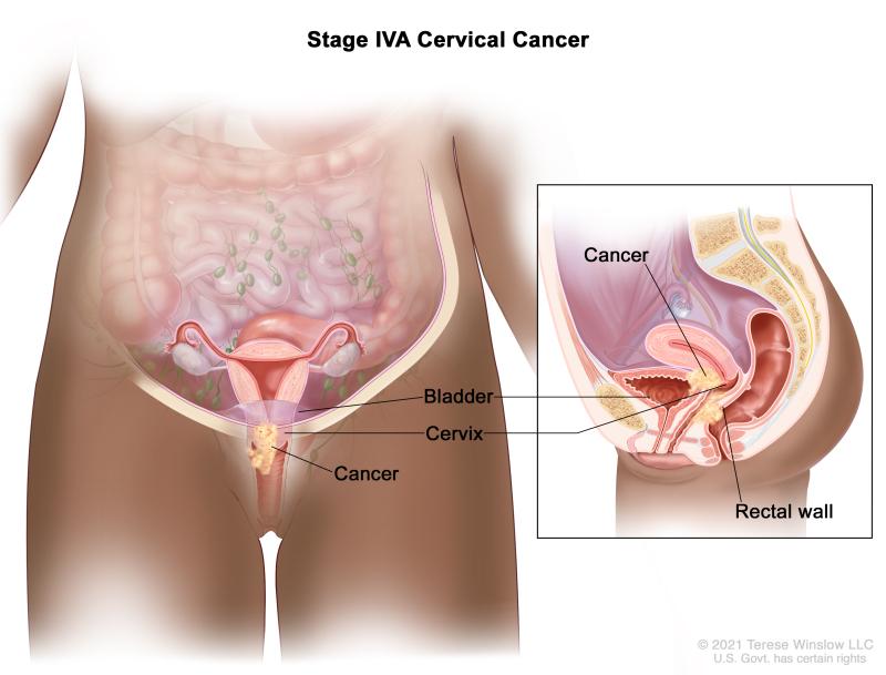 Cervical Cancer Treatment (PDQ®) - PDQ Cancer Information